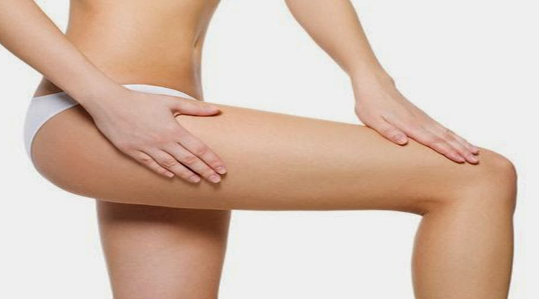 Cellulite…Treating the Appearance!